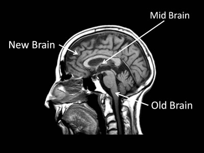 brain diagram section